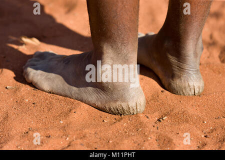 Kalahari Desert bushman woman with cracked heels - Stock Image