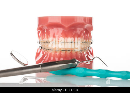 Dental jaw model with bracers - Stock Image