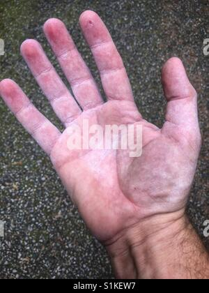A little raw after climbing. - Stock Image