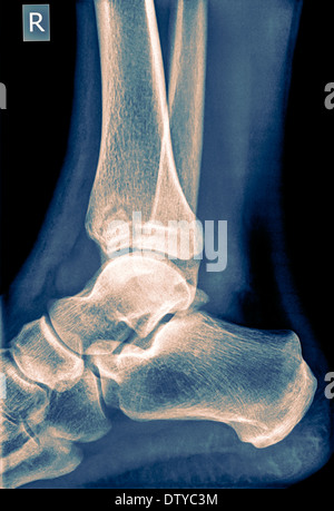 X-ray of an ankle 50 year old male with a fractured tibia. Side View - Stock Image