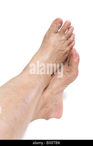 Female mature legs,healthcare conceptual - Stock Image