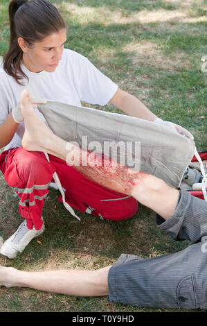 Paramedic placing a bandage on leg of a fire victim with third degree burns. Simulated exercise, realistic medical make-up. - Stock Image