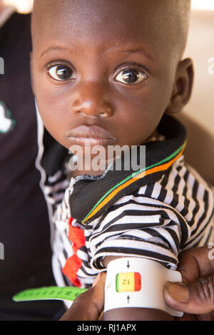 Samba village, Yako Province, Burkina Faso : Government run malnutrition clinic where children are assessed and mothers advised. - Stock Image