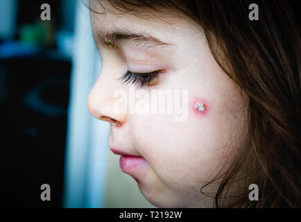chicken pox spots baby face side cheek - Stock Image