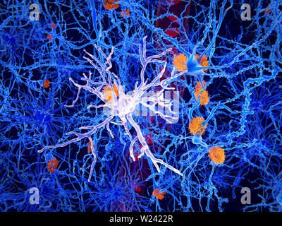 Amyloid and microglia cell in Alzheimer's disease. Illustration of amyloid plaques (orange) and a microglia cell (light purple, centre) among brain ce - Stock Image