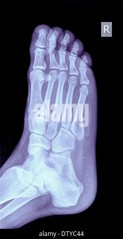 x-ray of a foot showing a fracture in the 5th metatarsalia of a 31 year old male - Stock Image