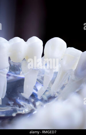 Dentist dental teeth teaching model showing each tooth and gum for patients and students. - Stock Image