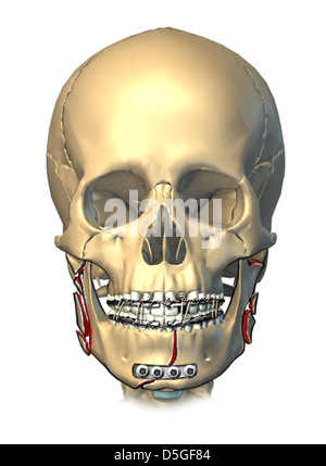 Multiple Mandible Fractures and Fixation - Stock Image