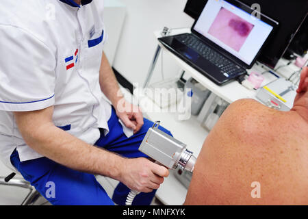 The dermatologist examines the moles or acne of the patient with a dermatoscope. - Stock Image