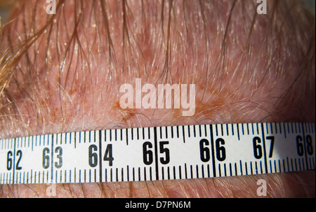 Example of how to measure size of suspicious skin freckle or mole. On head, tape measure used next to freckle shows - Stock Image
