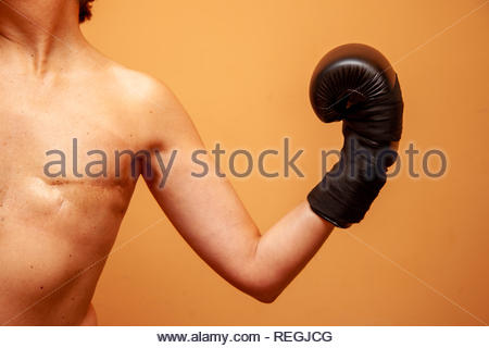 Mastectomized female boxer poses with her boxing gloves and naked torso - Stock Image