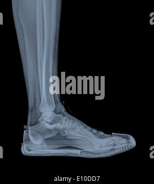 X-Ray of a foot and ankle in a trainer - Stock Image