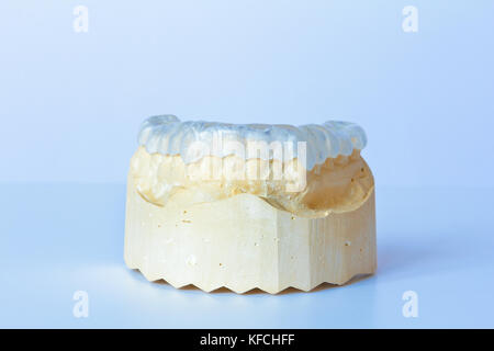 Grind guard made out of clear plastic on a custom-made tooth model, used against excessive wear caused by bruxism - Stock Image