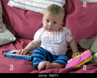7 month old baby with chicken pox - Stock Image