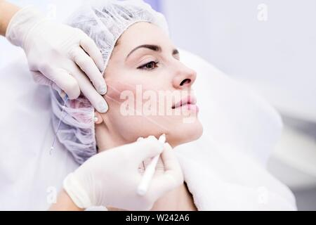 Dermatologist drawing marks on woman face for thread-lift, close-up. - Stock Image