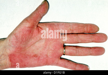 LIVER PALMS - Stock Image