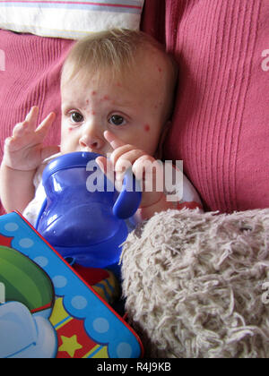 5 month boy with chicken pox - Stock Image