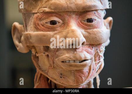 Anatomy of a real human head - Stock Image