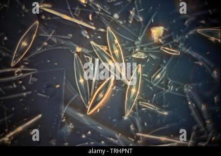 Anomoenis (Navicula) setians diatoms, Agglestone bog, studland, Swanage. Darkfield photomicrograph - Stock Image