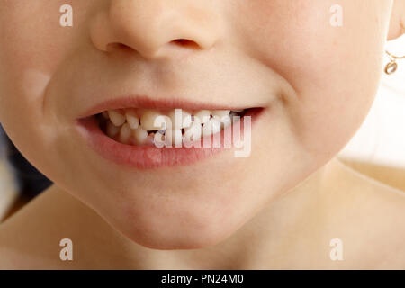 Six year old girl with a new tooth growing through after pushing the baby tooth out - Stock Image