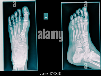 Healthy X-ray ofa foot of a 12 year old male - Stock Image