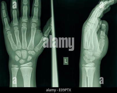 wrist of a 9 year old male patient with a Distal Radius Fracture - Stock Image