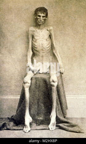 American Civil War, Emaciated Union POW, 1864 - Stock Image