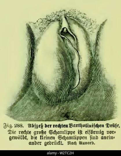 Schamlippe der drüse an Schamlippe Pickel