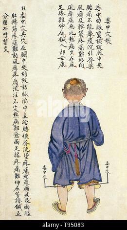 Acu - moxa Punkt Diagramm zeigt die weizhong (Mitte der Alston), von Chuanwu lingji Lu (Aufzeichnung der souveränen Lehren), von Zhang Youheng, eine Abhandlung über die acu - moxa in zwei Bänden. Diese Arbeit überlebt nur in einer Handschrift Entwurf, 1869 (im 8. Jahr der Tongzhi Herrschaft der Qing-dynastie) erledigt). Die weizhong Punkt ist auf der Rückseite des Knies in der Mitte der Fossa poplitea Knick. Es kann bis zu einer Tiefe von 5 fen (1 fen [0,1 Cun/Chinesisch proportional inch]=c genadelt werden. 0. Stockbild