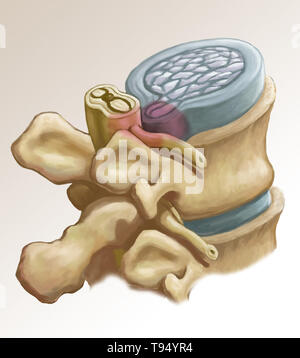 Eine Abbildung der Bandscheibenvorfall eine Bandscheiben in der Lendenwirbelsäule. Personen leiden unter einem Bandscheibenvorfall, wenn die äußere fibrösem Gewebe der Festplatte, bekannt als der Anulus fibrosus können durch Trauma oder Alter, bersten. Als ein Ergebnis, das Gel - wie Mitte der Scheibe herausragt, nach außen und drückt die Nerven in der Rückseite, Schwächung der Muskulatur und verursachen schwere lokale Rückenschmerzen. Stockbild
