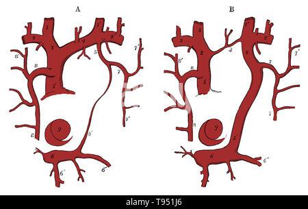 Diagramm der Überbleibsel der Linken superior Cava und ein Fall von seiner Beharrlichkeit. Stockbild