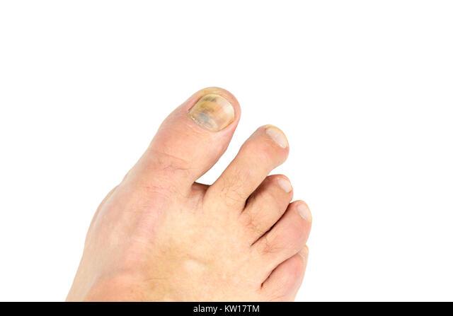 Dem zehennagel unter bluterguss Blauer Zehennagel