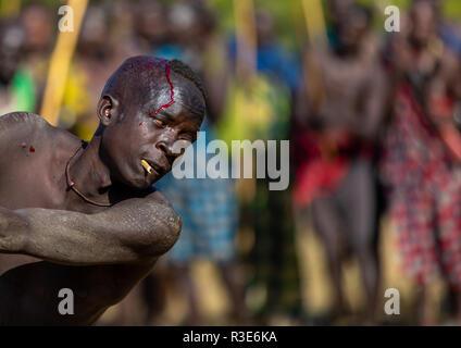 Suri tribu guerrero sangrado durante un donga ritual de combate con palo, valle de Omo Kibish, Etiopía Imagen De Stock