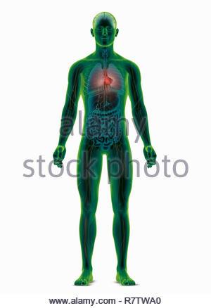 Generado por ordenador ilustración biomédica del cuerpo humano destacando el corazón Imagen De Stock