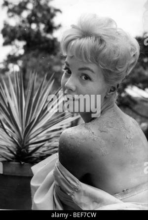 L'actrice Sandra Dee montre une desquamation de la peau, sur le dos, circa 1959. Photo Stock