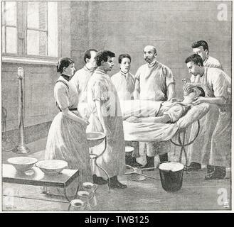 Anaesthesising un patient avant une opération-note la tête nue et primitive de l'équipement. 1888 Photo Stock