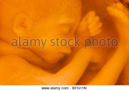 Foetus humain, National Medical Museum, Washington, D.C. Photo Stock