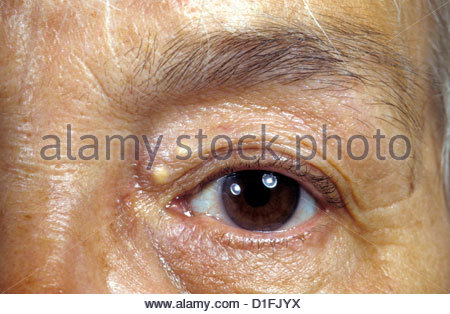 XANTHELASMA PALPEBRARUM Photo Stock