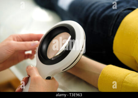 Il dermatologo utilizzando un professionista di lente di ingrandimento mentre si esegue un esame della pelle, controllo benigne moli sulla mano. Il dermatologo esaminando birthmarks un Immagini Stock