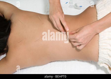 La donna che riceve un trattamento di agopuntura da un terapeuta Immagini Stock