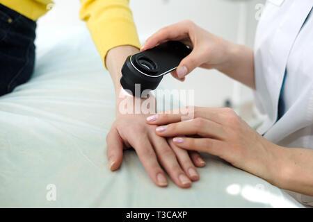 Il dermatologo femmina usando un professionista dermatoscope mentre si esegue un esame della pelle, controllo benigne moli sulla mano. Il dermatologo esaminando birthmarks Immagini Stock