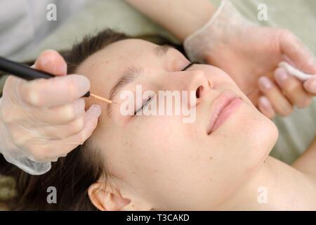 Trattamento medico la rimozione di birthmark femmina dal viso del paziente. Femmina dermatologo chirurgo mediante elettrocauterizzazione per la rimozione di mole. Onda Radio ele Immagini Stock