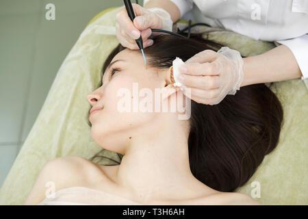Trattamento medico la rimozione di birthmark femmina dal viso del paziente. Femmina dermatologo chirurgo utilizzando un professionista di elettrocauterizzazione per la rimozione di mole. Immagini Stock