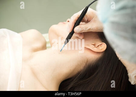 Trattamento medico la rimozione di birthmark femmina dal collo del paziente. Femmina dermatologo chirurgo mediante elettrocauterizzazione per la rimozione di mole. Onda Radio ele Immagini Stock