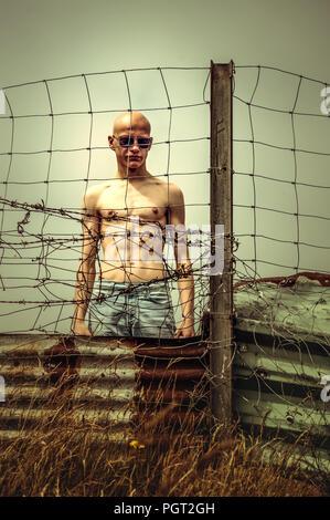 Giovane uomo arrabbiato con testa calva in piedi vicino al recinto di filo Immagini Stock
